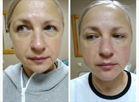 1 процедура на аппарате,слева- до,справа- после