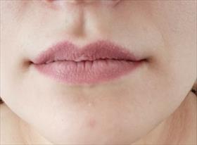 Коррекция губ препаратом Rejeuness deep.