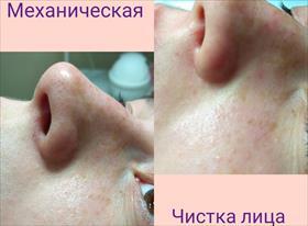 Чистка лица механическая